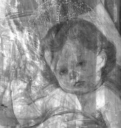 05 - braccio e viso bambino